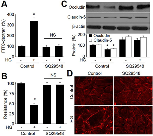 Antagonist of TPr by SQ29548 improves tight-junction in HBMECs incubated with HG.