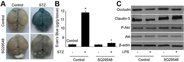 Antagonist of TPr by SQ29548 attenuates hyperglycemia-impaired integrity and function of blood-brain barrier in rats.