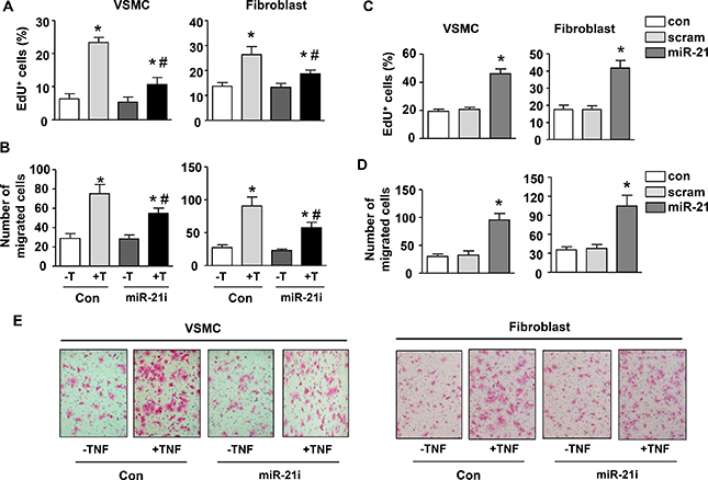 MiR-21 mediates TNF-induced proliferation and migration in vascular smooth muscle cells and fibroblasts.