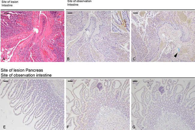 Morphology of intestinal lesion and tissue distribution of PSP & PAPI.