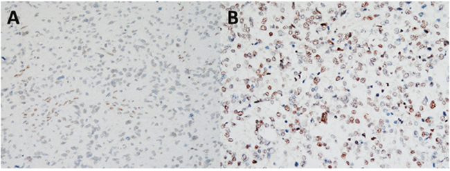 Representative results of immunohistochemical staining for Fli-1, using samples obtained from astrocytoma patients with different scores.