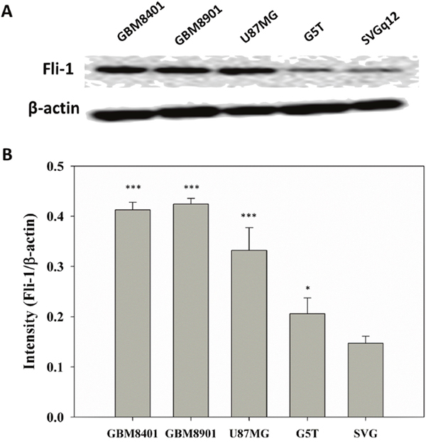 Fli-1 protein expression in all tested astrocytoma cell lines.