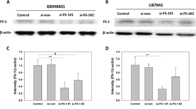 Comparison of Fli-1 expression in control, non-siRNA-treated, and Fli-1 siRNA-treated astrocytoma cells.