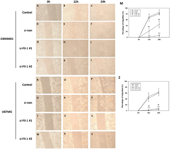 Wound healing analysis of GBM8401 cells and U87MG cells transfected with Fli-1 siRNA at 0, 12, and 24 hours after monolayer injury.