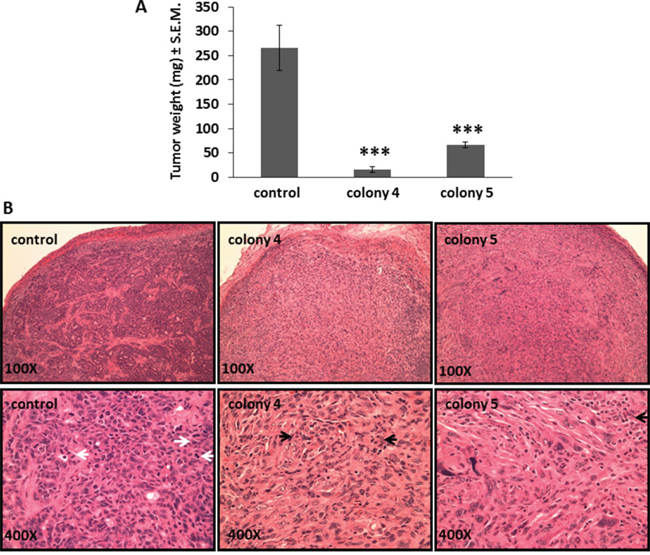 Bmi1 inhibition in FMMC 419II cells stably transfected with Bmi1 shRNA causes reduced tumor growth when transplanted in vivo.