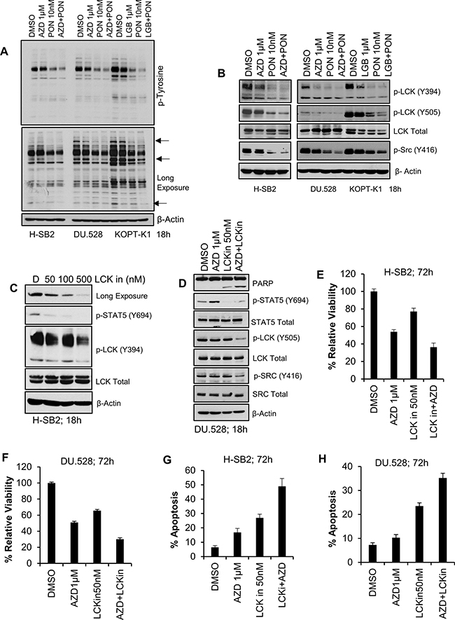 Synergistic effect of pan-PIM inhibitor(s) with Ponatinib or LCK inhibitor (LCKin) in T-ALL cell lines.