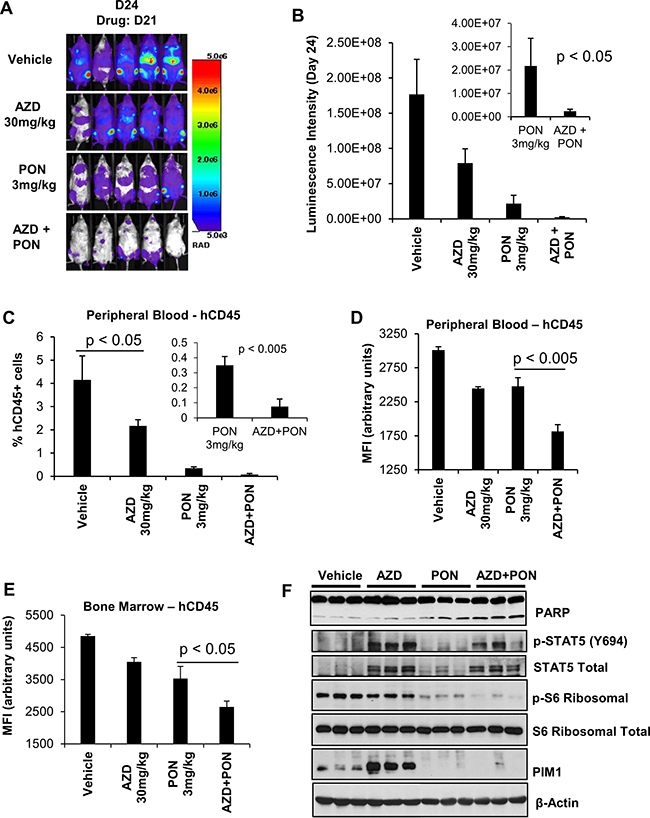 The in-vivo sensitivity of H-SB2, an ETP-ALL cell line to AZD1208 (AZD) and Ponatinib (PON) combination treatment.