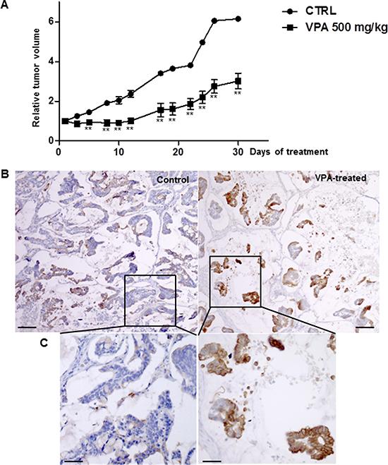 VPA treatment in a subcutaneous human colon tumor xenograft.