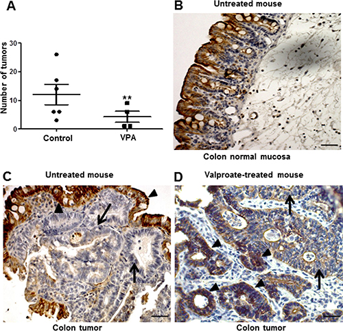 Intestinal CXCL12 expression and carcinoma development in control and VPA-treated APCΔ14/+ mice.