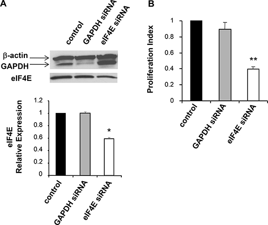 siRNA mediated knockdown of eIF4E in B16 cells.