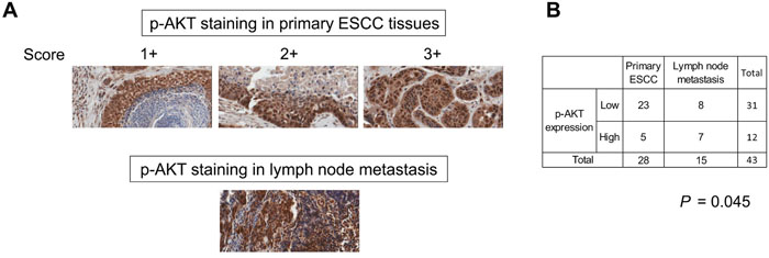 Constitutive activation of PI3K/AKT in lymph node metastases of ESCC.