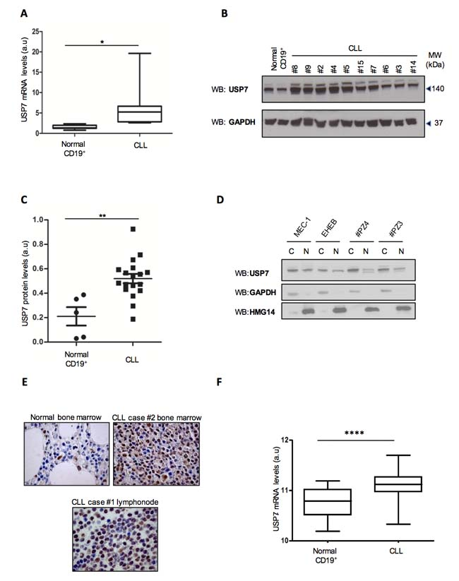 USP7 is strongly up-regulated in CLL samples.