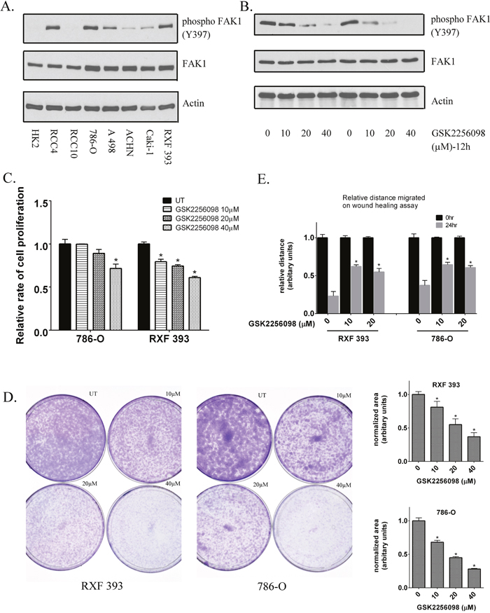 Inhibition of FAK kinase activity in RCC lines.