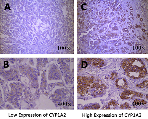 Immunohistochemical staining of CYP1A2 in breast cancer tissues.