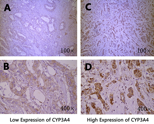 Immunohistochemical staining of CYP3A4 in breast cancer tissues.