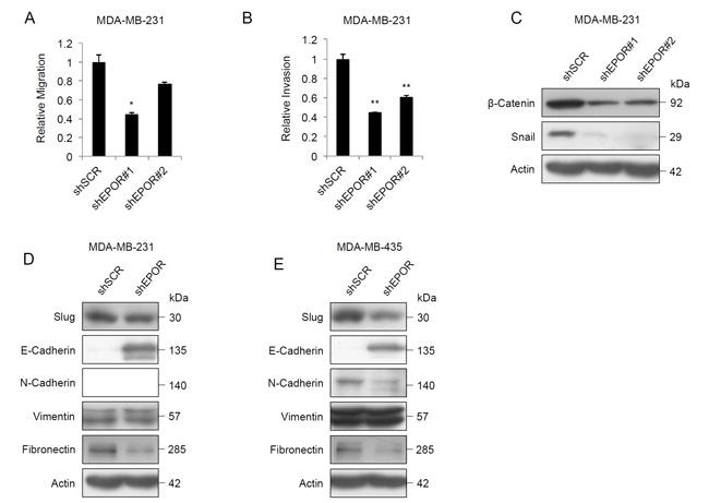Effect of EPOR knockdown on migration, invasion and EMT protein expression.