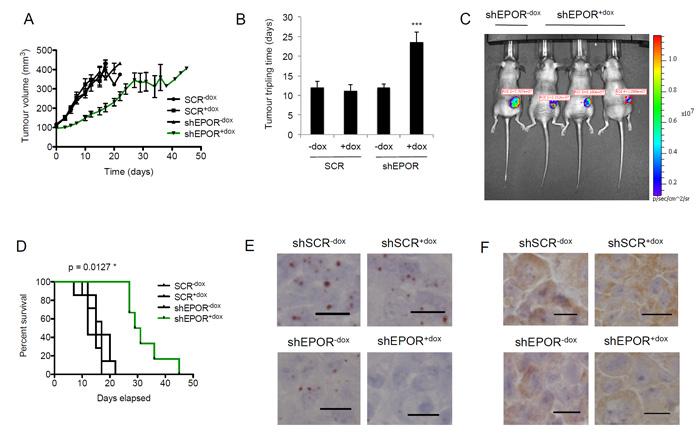 Effect of EPOR knockdown on breast tumor growth