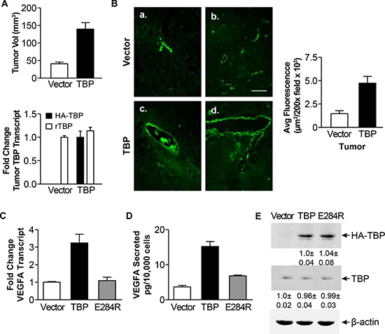 Rat1a cells with enhanced TBP expression form tumors with increased von Willebrand staining and exhibit increased VEGFA expression.