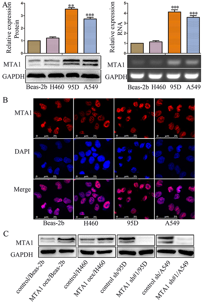 MTA1 expression and cellular location in NSCLC cell lines.