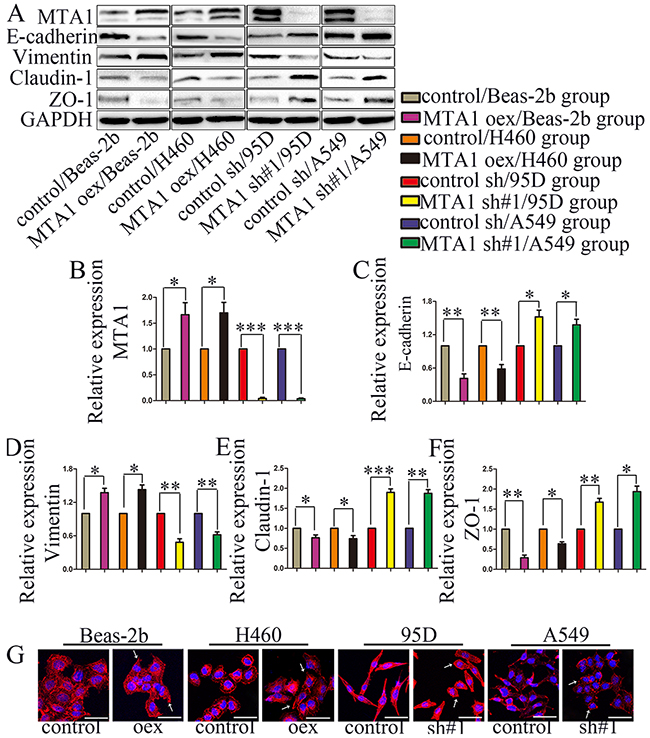 MTA1 expression is associated with NSCLC cell EMT.