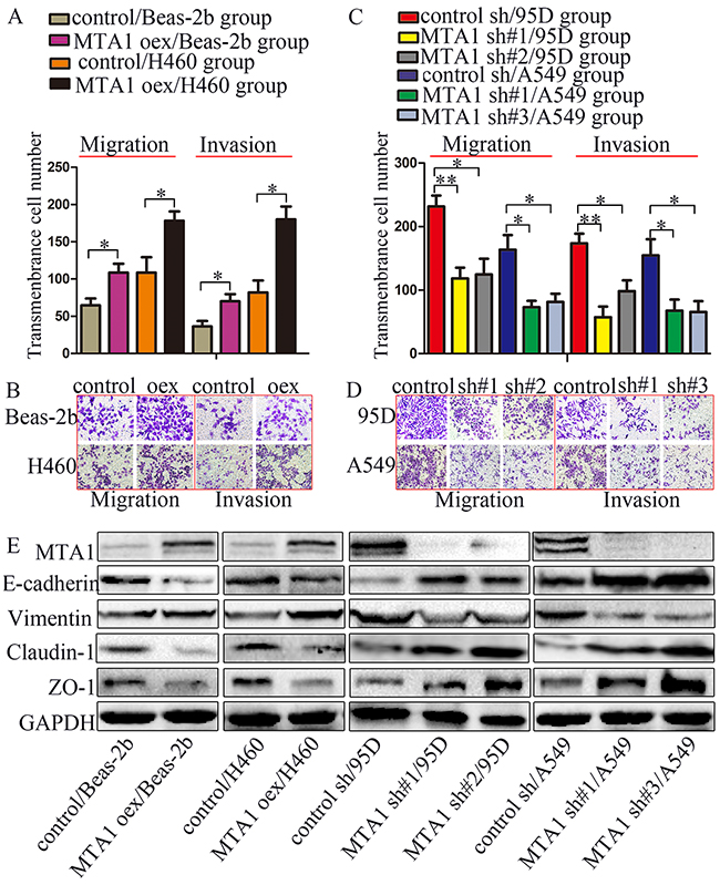 MTA1 promotes NSCLC cell metastasis through EMT.