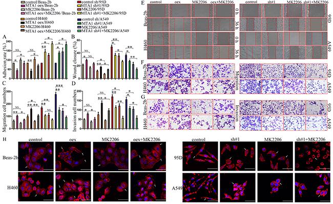 Effects of AKT inhibitor, MK2206, on MTA1-induced malignant phenotypes.