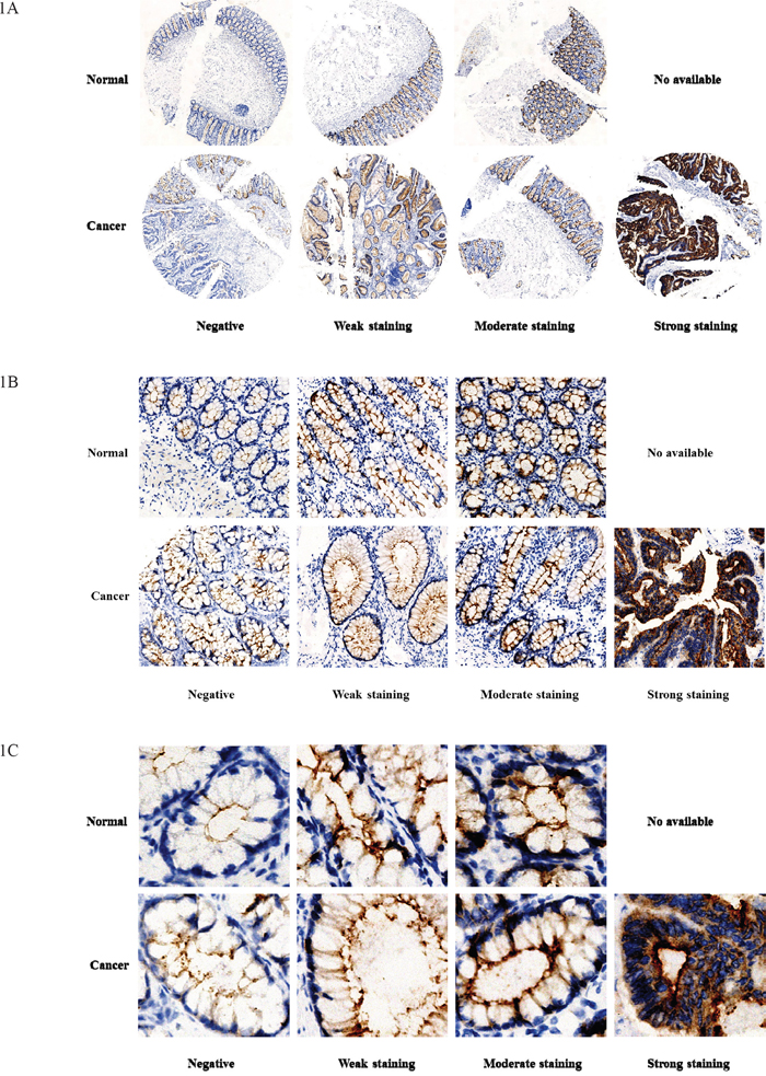 GCC expression in normal mucosal tissues and tumor tissues of rectum.