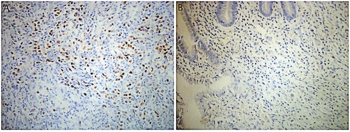 Chromogenic in-situ hybridization for Epstein-Barr Virus-encoded RNA (EBER) in SRCC tissue.