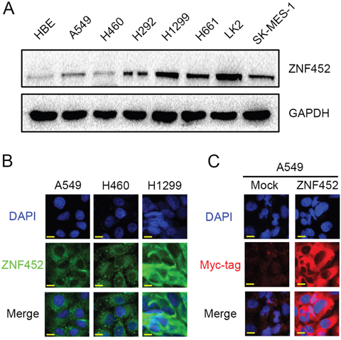 The expression and subcellular localization of ZNF452 in NSCLC cells.