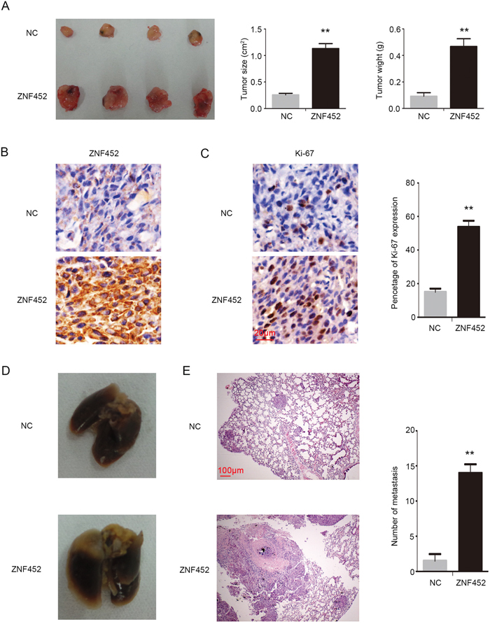 ZNF452 enhanced proliferation and invasion of NSCLC cells in vivo.
