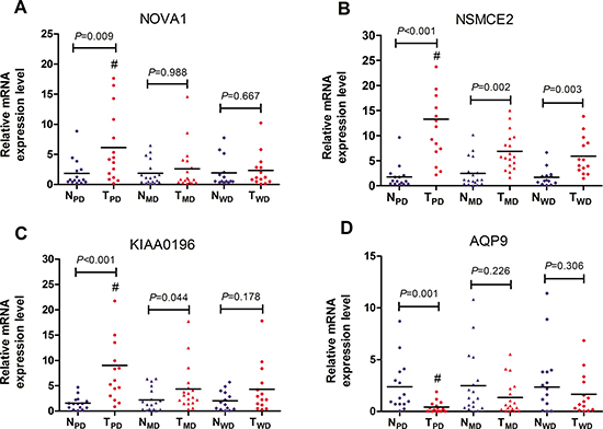 RT-PCR validation of 4 DEGs specific for poorly differentiated HCC.