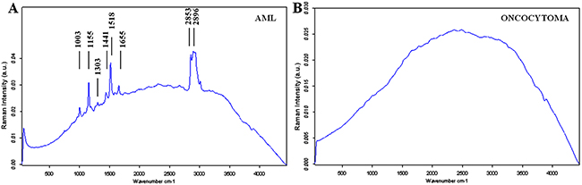 The mean Raman spectra of benign renal tumors.