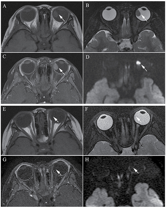 Clinically diagnosed retinoblastoma in a 44-month-old female (patient 2).