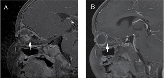 Clinically diagnosed retinoblastoma in a 16-month-old male (patient 3).