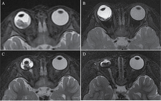 Retinoblastoma diagnosed in a 16-month-old female (patient 4).