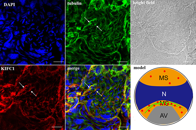 KIFC1 and microtubule expression pattern in mid-stage spermatids.