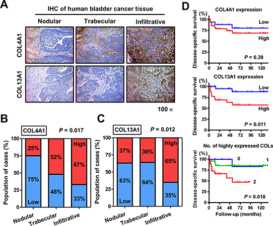 Immunohistochemical (IHC) staining analysis of COL4A1 and COL13A1 in bladder tumor tissues.