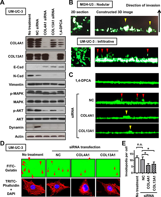 The association of COL4A1 and COL13A1 produced in UCB cells with the formation of the infiltrative growth pattern.
