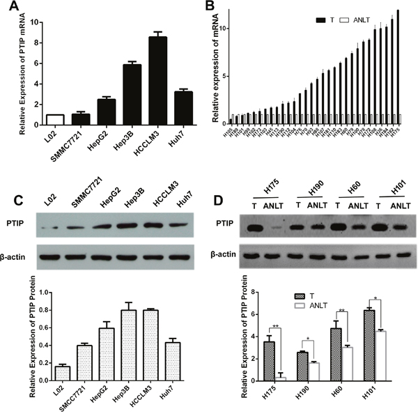 PTIP expression is up-regulated in HCC tissues and cells.