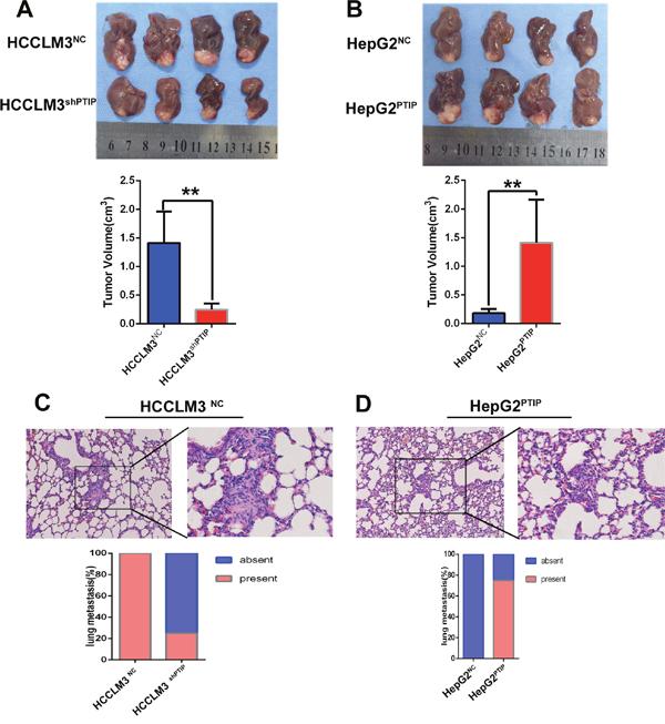 PTIP promotes metastasis of HCC in vivo.