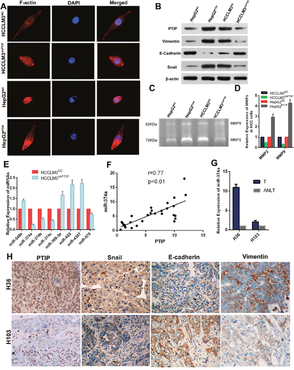 PTIP induces epithelial-mesenchymal transition (EMT) through miR-374a in hepatocellular carcinoma.