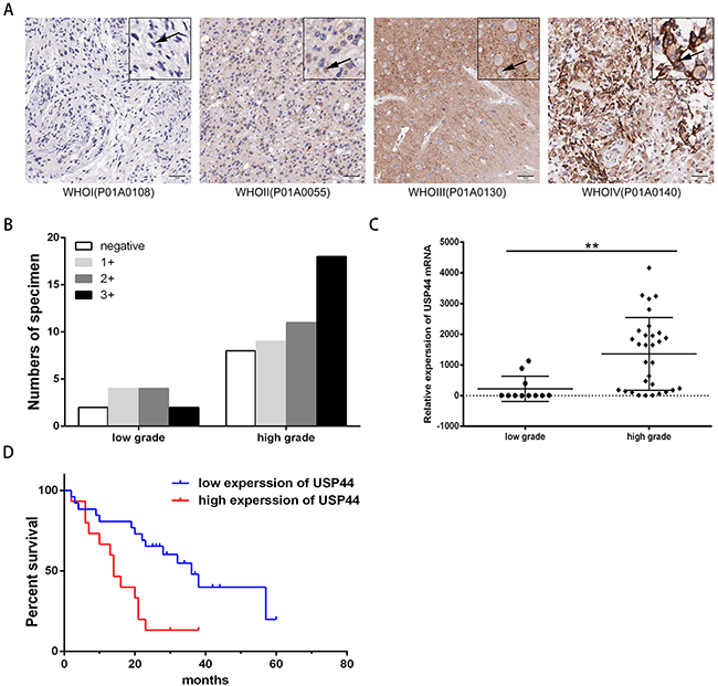 Protein and mRNA expression level of USP44 in glioma tissue samples.