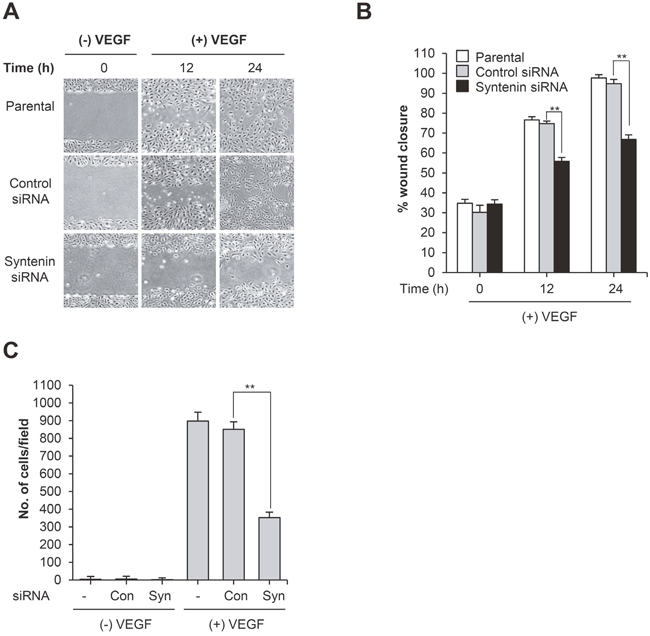 Knockdown of syntenin inhibits VEGF-induced migration and invasion.