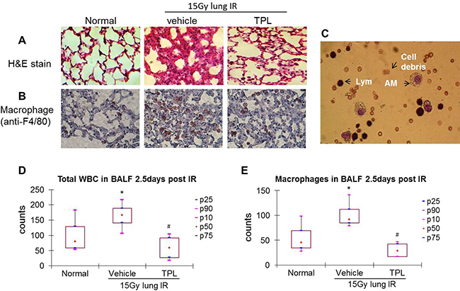 TPL reduced AMs in lung tissue and BALF at 2.5 days after thoracic irradiation.