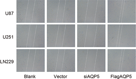 Effect of AQP5 gene silencing on the cell migration of U87-MG, U251 and LN229.