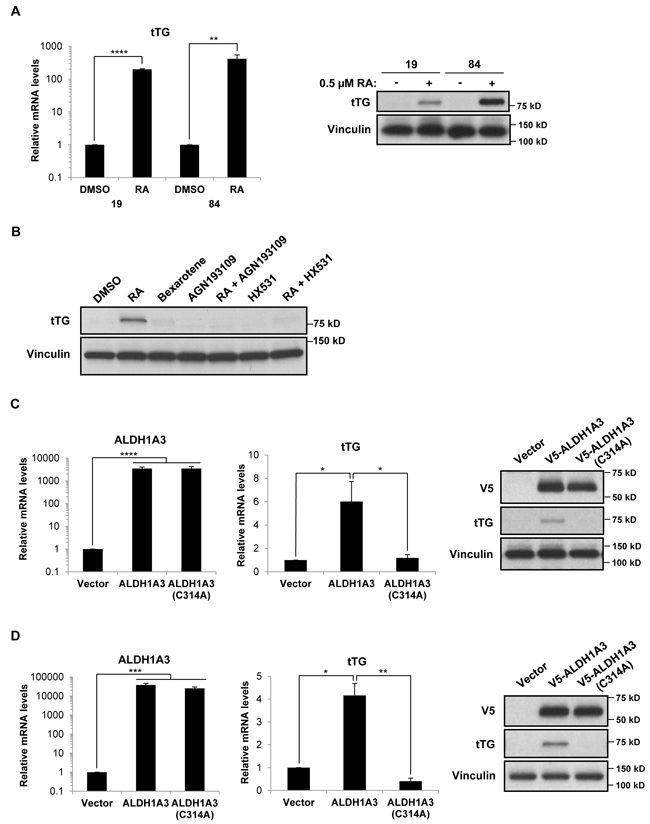 Retinoic acid and ALDH1A3 are sufficient to induce the expression of tTG in PN GSCs.