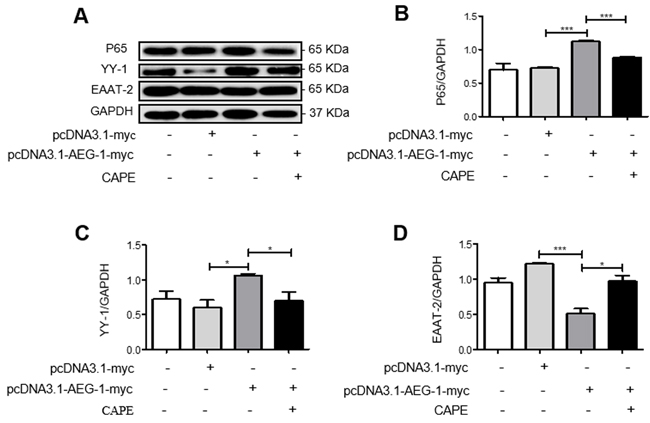 AEG-1 upregulates YY-1 expression and inhibits EAAT-2 expression in U87 cells