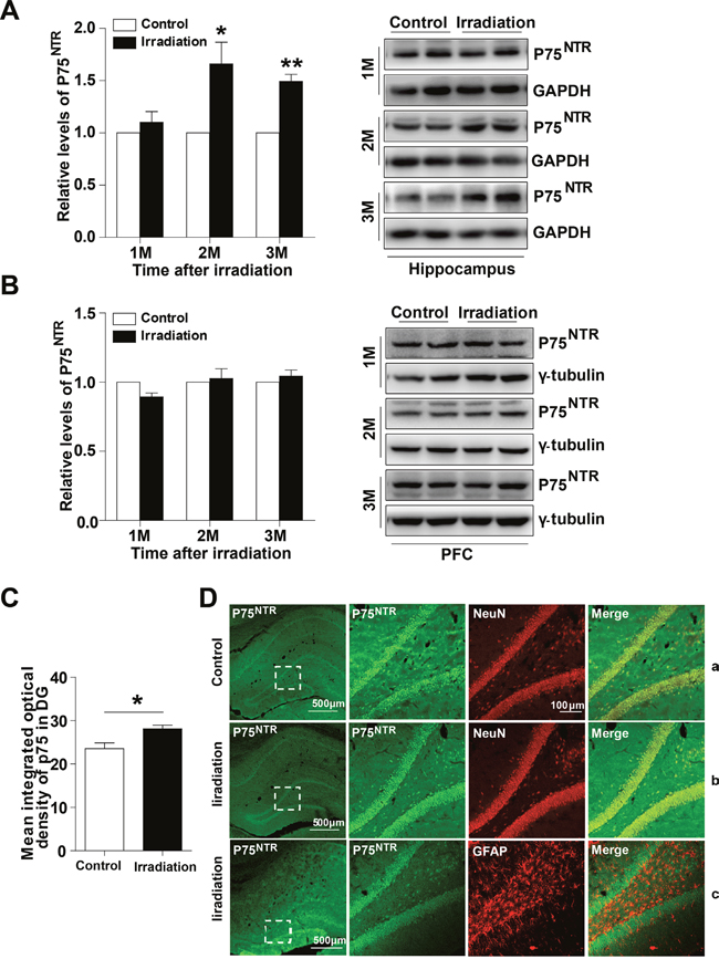 The expression and location of p75NTR in the irradiated rat hippocampus.