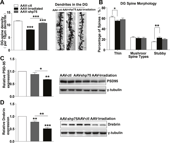 Normalization of p75NTR levels in irradiated rats prevents dendritic spines and synapse-related proteins deficits.