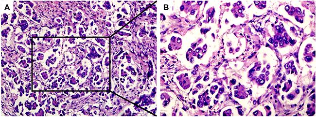 Hematoxylin–eosin staining of MPP-positive specimens.